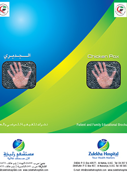 http://www.zulekhahospitals.com/uploads/leaflets_cover/16What-is-chickenpox.jpg