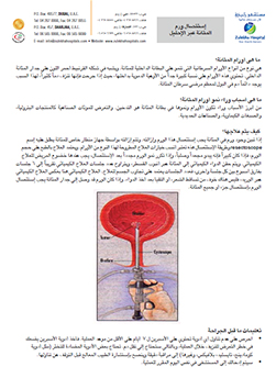 http://www.zulekhahospitals.com/uploads/leaflets_cover/32TURBT-arabic.jpg